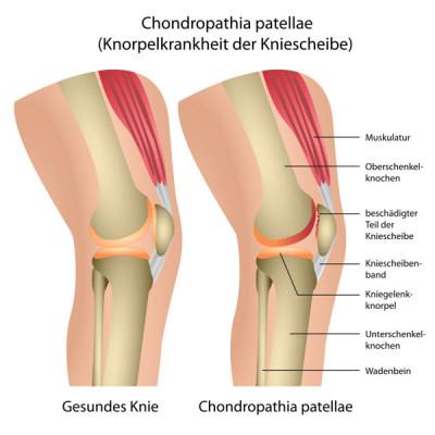 Muskelaufbau Knie stärken, stabilisieren